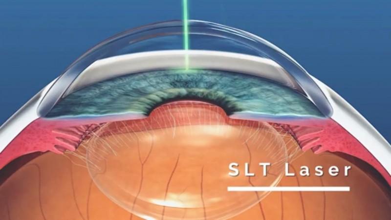Laser SLT substitui colírios no tratamento do glaucoma | Alerta Paraná